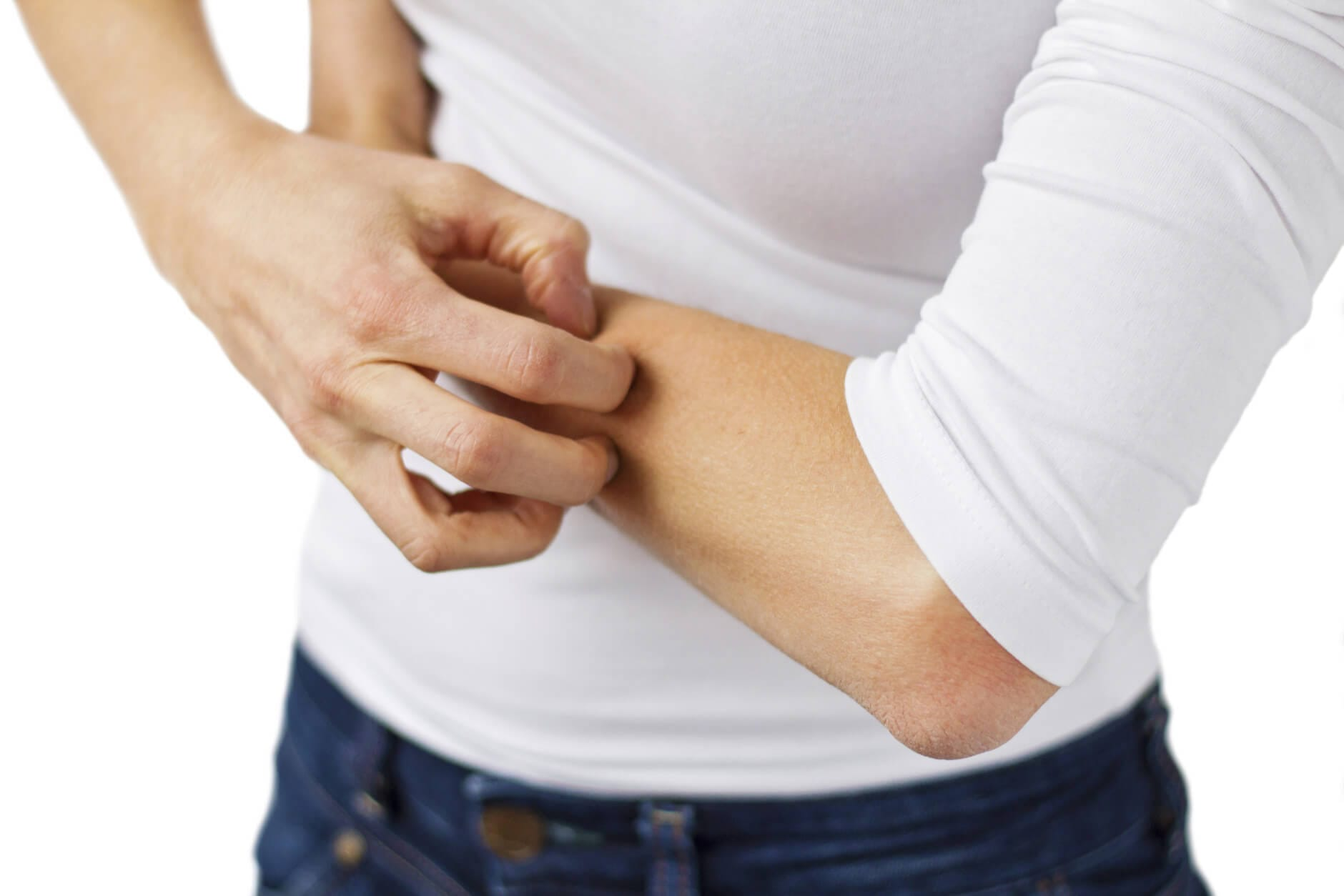 Eczema And Psoriasis Treatment